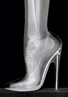 High Heels Bad For Feet